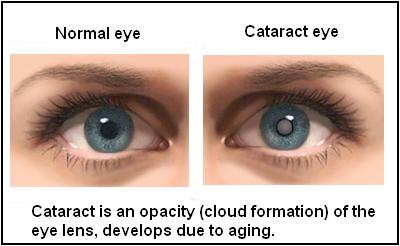 Cataract & Glaucoma Hospital
